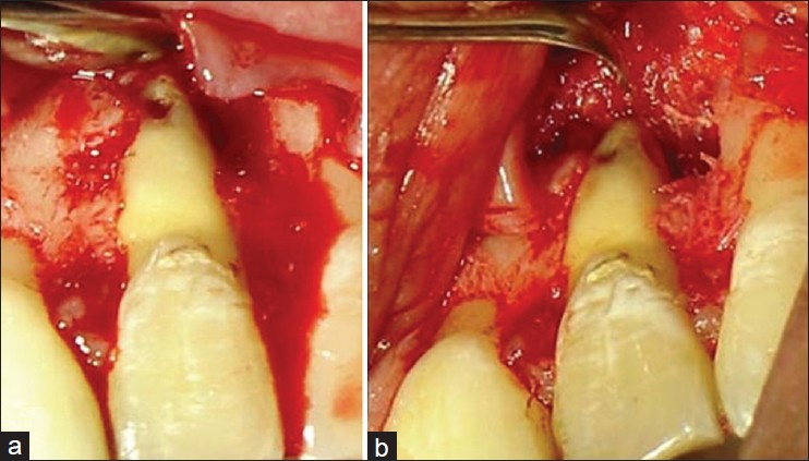 Retreatment And Surgical Repair Of The Apical Third