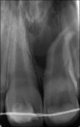 Figure 7: Immature permanent incisor with open apex immediately