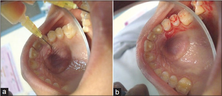 Figure 2: Photograph the palatal selling during aspiration of the lesion (a) and after (b)
