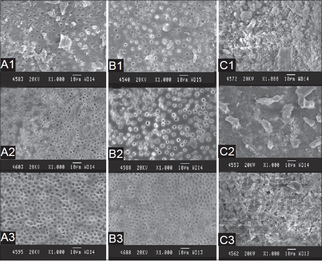 Figure 1: Representative SEM photographs of all the groupsat 6 mm level (middle third). A1-17% EDTA solution followed by1% NaOCl solution for 1 min.A2-17% EDTA solution followed by