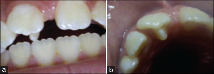 Type Ii Dens Evaginatus Of Maxillary Central Incisor An Alternative