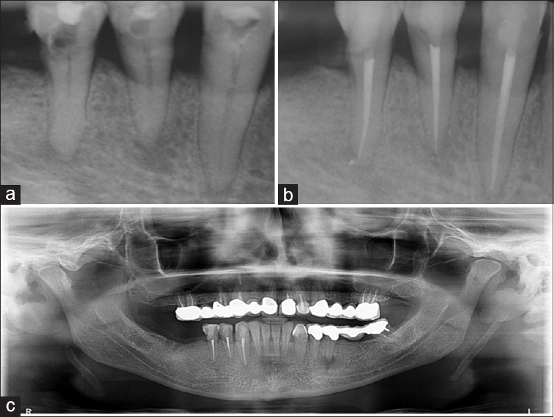 Mental nerve paraesthesia: A review of causes and two endodontically