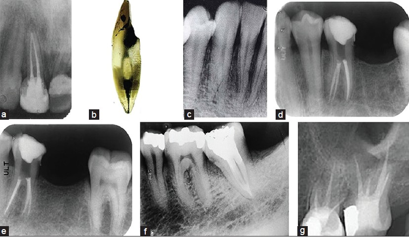 Root And Root Canal Morphology Of Saudi Arabian Permanent Dentition