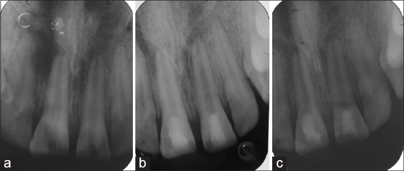 Figure 1: Radiographs of teeth number 11.21 showing preoperative status (a), status after 6 months (b) and after 12 months (c) of using blood clot as scaffold