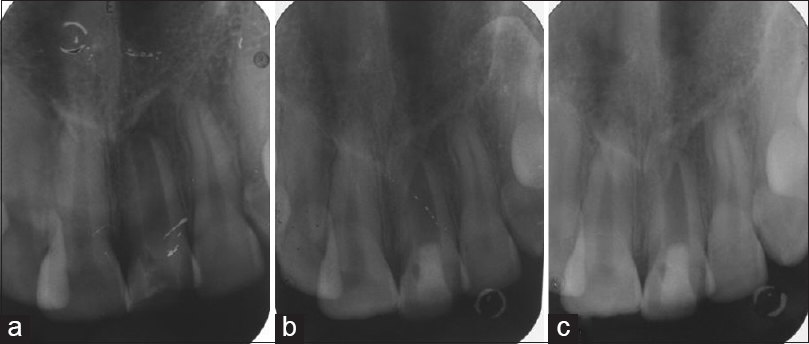 Figure 3: Radiographs of tooth number 21 showing preoperative status (a), status after 6 months (b) and after 12 months (c) of using collagen as scaffold