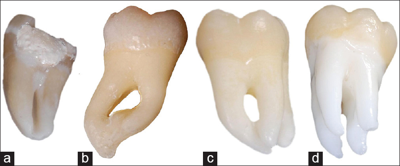 Root And Root Canal Morphology Of Third Molars In A Jordanian