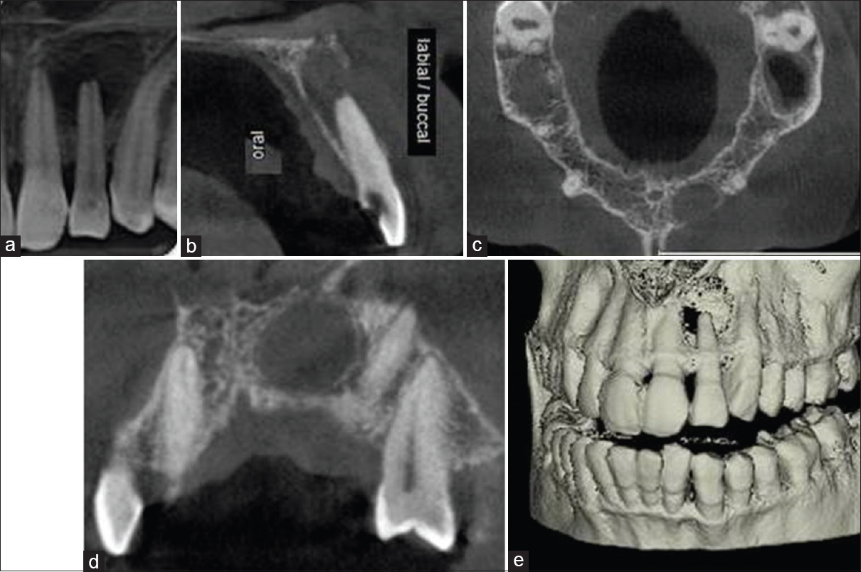 Endodontic practice management with cone-beam computed tomography ...