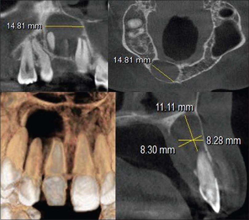 Endodontic practice management with cone-beam computed