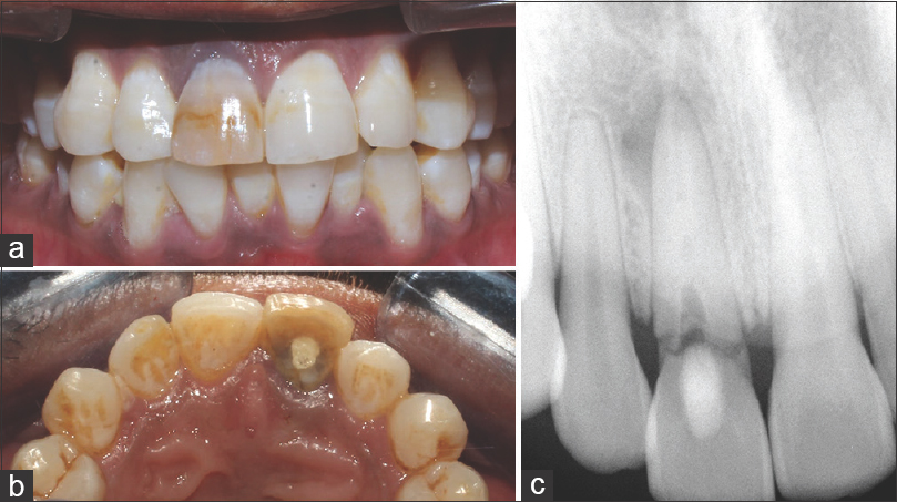 Figure 1: Clinical photographs showing the fractured central incisor (a) labial view. (b) Palatal view. (c) Diagnostic radiograph showing the fractured crown and the associated periradicular radiolucency