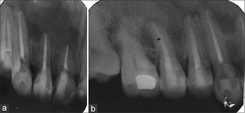 Figure 10: Periapical radiograph at 6 months follow-up of root canal treated teeth (a) teeth #11, 12, and 13 and (b) teeth #13, 14, and 15
