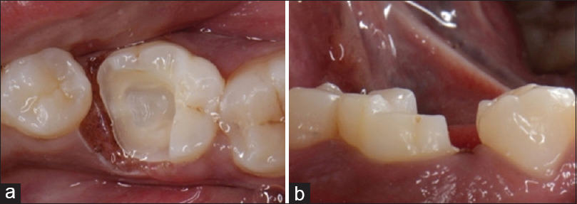 Figure 1: (a) Preparation done for Endocrown-cervical sidewalk (Occlusal view), (b) Preparation done for endocrowns (Buccal view)